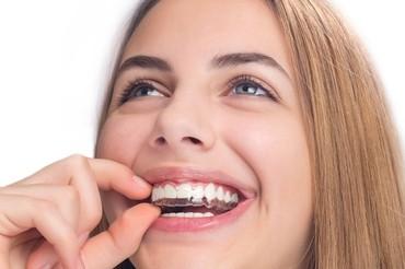 unsichtbare Zahnspange